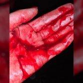«Поднял руку и порезал»: о жестоком нападении таксиста сообщила алматинка