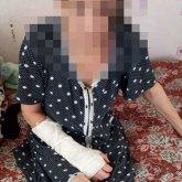 Муж сломал жене руку и ногу в СКО