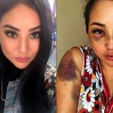 Экс-полицейский, обвиненный женой в жестоком избиении, подал на нее в суд за огласку в СМИ