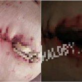 Павлодарку после операции отправили домой с огромной гниющей дырой в животе