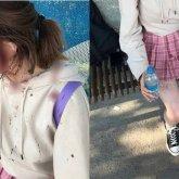 «Были не в адеквате». Избитая двумя женщинами девочка рассказала подробности нападения