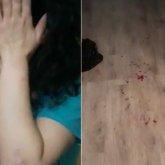 Алматинец до крови избил женщину, она просила о помощи