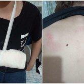 Муж и жена жестоко избили незнакомую 13-летнюю девочку в Нур-Султане