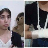 «Потеряла сознание»: 13-летняя астанчанка рассказала подробности жестокого избиения мужчиной