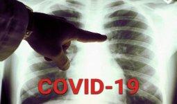 Пульмонолог – о вспышке пневмонии: Это следствие КВИ
