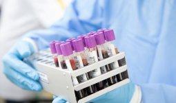 Жители ВКО сами виноваты в росте заболеваемости КВИ, считают власти