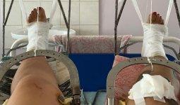 Из-за чужого 6-летнего ребенка мать двоих детей навсегда осталась инвалидом в СКО