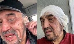 Информацию об ампутации ушей замершего на трассе карагандинца прокомментировали врачи