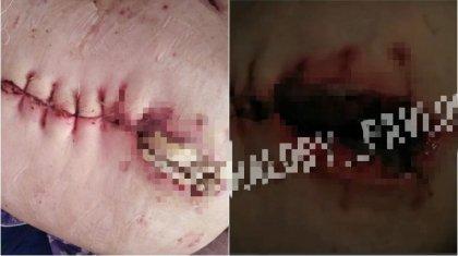 Почему казахстанку выписали из больницы с огромной дырой в животе, рассказали врачи
