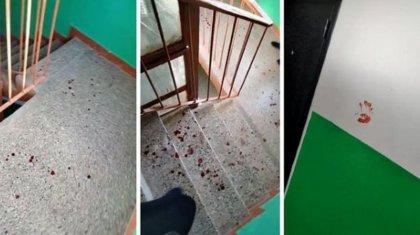 Аудиорассылку об отрезанном мужском органе прокомментировали в полиции ЗКО